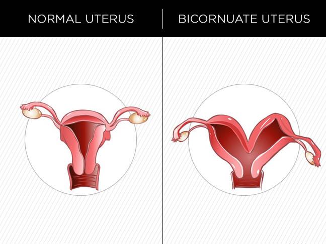 bicornuate_uterus